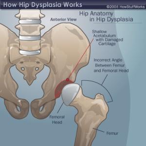 Dysplastic Hip