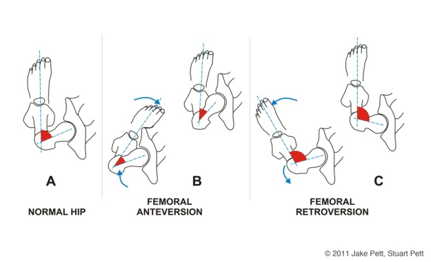 acetabular and femoral retroversion  u2014 seriously